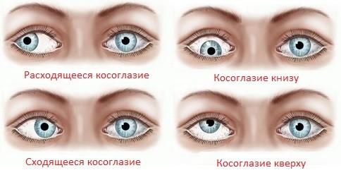 Купить очки для зрения в люберцах недорого