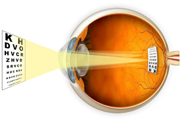 Можно ли носить очки для зрения