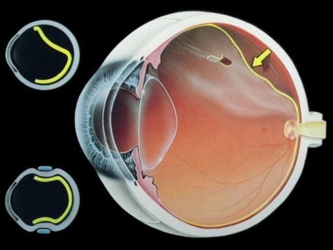 Виды линзы для зрения